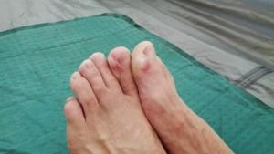 Un total d'entre 6 i 8 butllofes als peus amb altres problemes musculars em fan impossible caminar